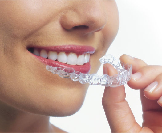Groupon Health Wellness Beauty invisalign