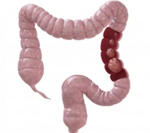Increase Awareness About Colon Cancer