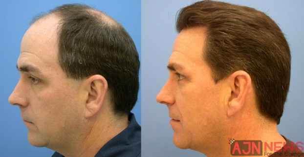 The Basics Of Hair Transplant Surgery